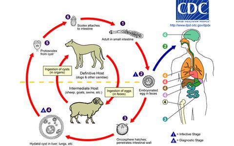 Echınococcus Granulosus (kıl hastalığı)
